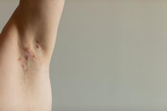 Akne Inversa